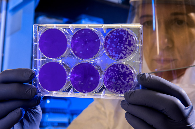 examining-the-results-of-a-plaque-assay.jpg