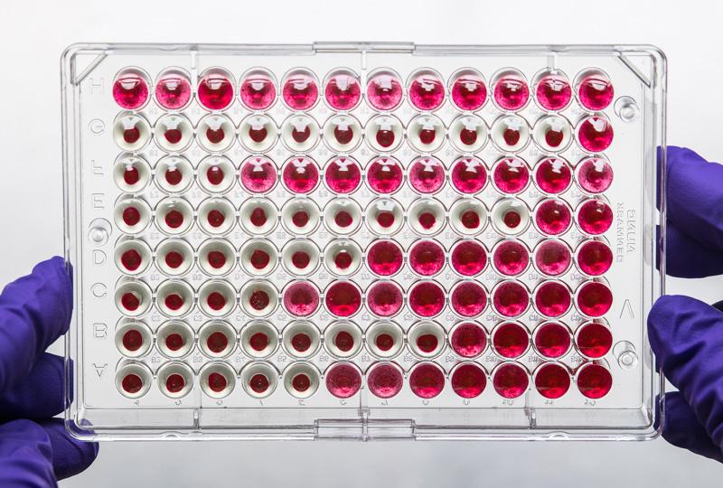 results-of-a-hemagglutinin-inhibition-test.jpg